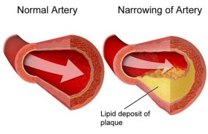 Cholesterol and Meniere's Disease