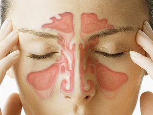 Sinuses and Meniere's disease