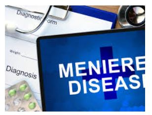 Meniere's disease research