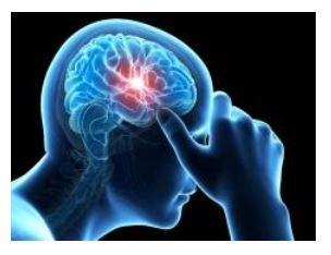 Meniere's Disease and Vestibular Migraine